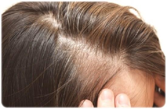 生え際が薄い女性のための育毛剤の選び方