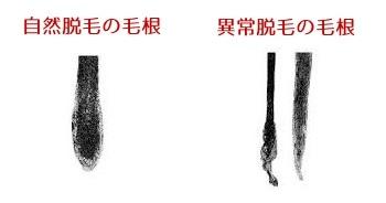 「抜け毛」の検索結果 - Yahoo!検索(画像)